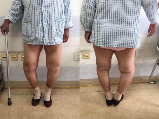 骨关节康复项目贫困患者实施手术前后对比